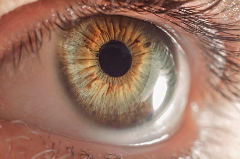 IMG-20190326-WA0037 eye